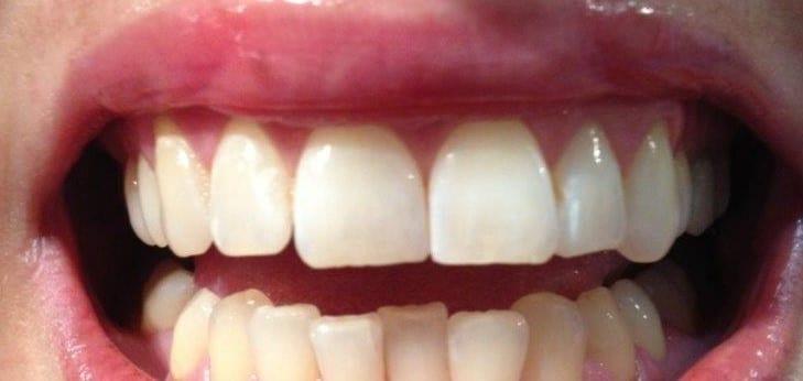 Teeth Whitening Reviews - Smile Labs